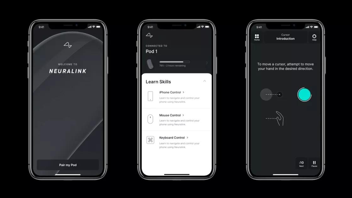 Neuralink app